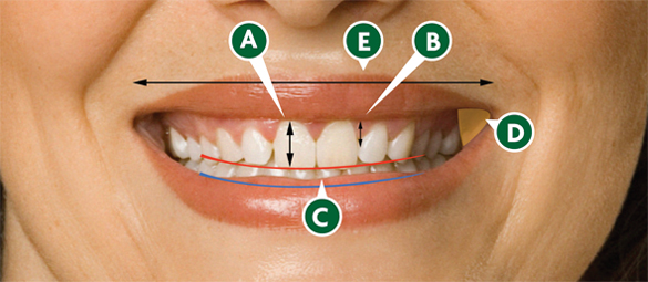 The Anatomy of the Smile